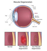 Mobile opticians in Norfolk. Macular degeneration and cataracts.