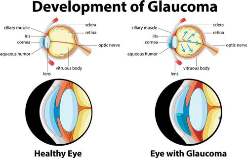 Mobile opticians in Norfolk and Norwich. How glaucoma works.