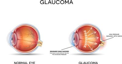 Mobile opticians in Norfolk and Norwich. Glaucoma and eye examination at home.